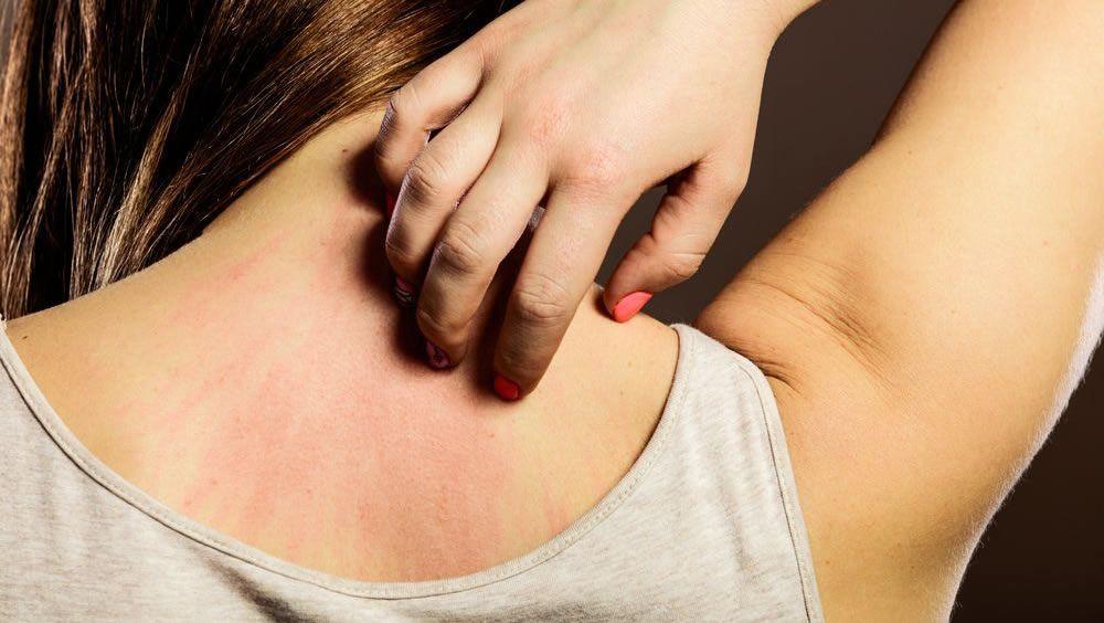 Dermatitis por el uso de cosmeticos
